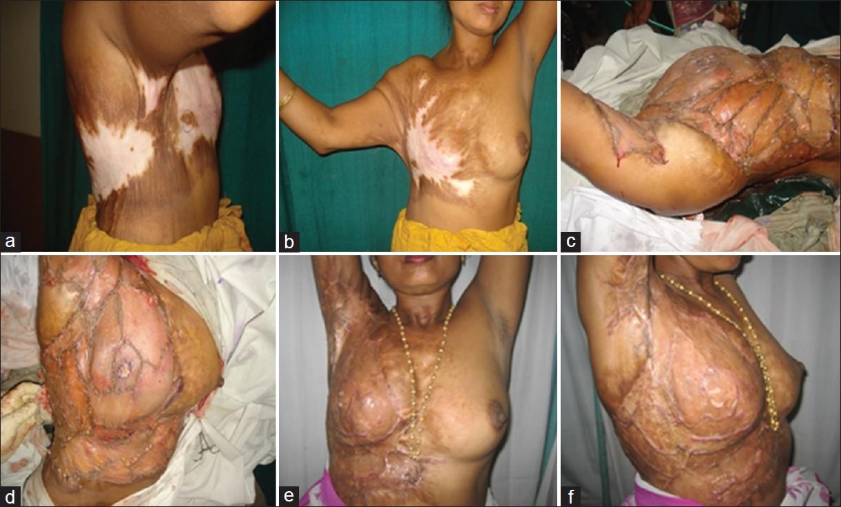 Indian breast massage