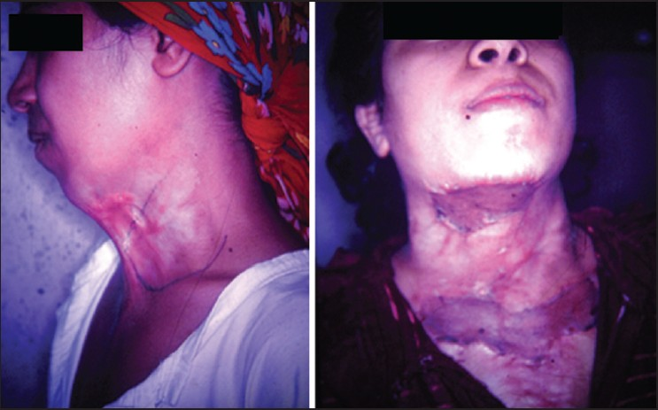 Figure 6: Moderate Linear contracture neck repaired by X-release and skin graft