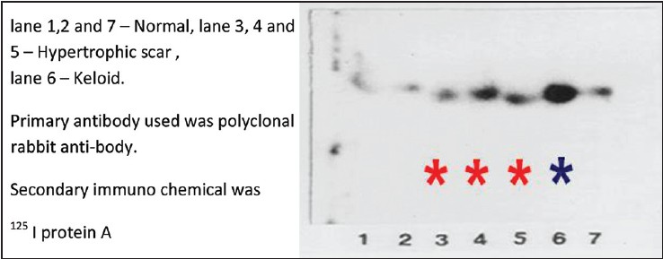 Figure 9: Immunoblot of keratins