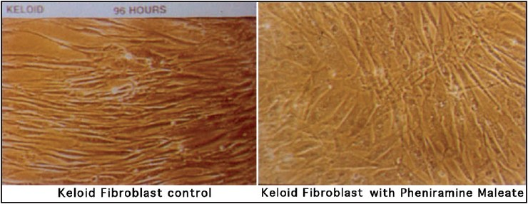 Figure 14: Effect of antihistamine avil on cultured fibroblasts