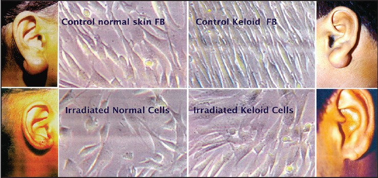Figure 15: Effect of radiation on cultured cells. Both keloid and normal skin fibroblasts show arrest of growth but not death after radiation