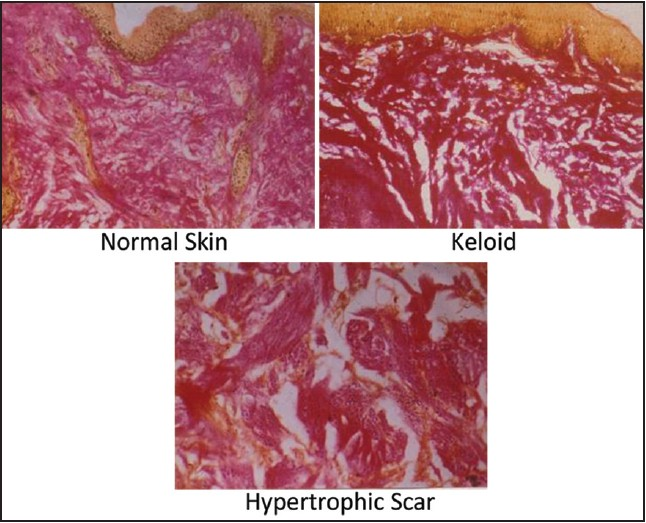 Figure 4: Histochemistry of scars