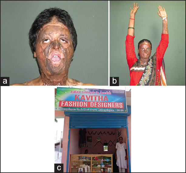 burns doctor india