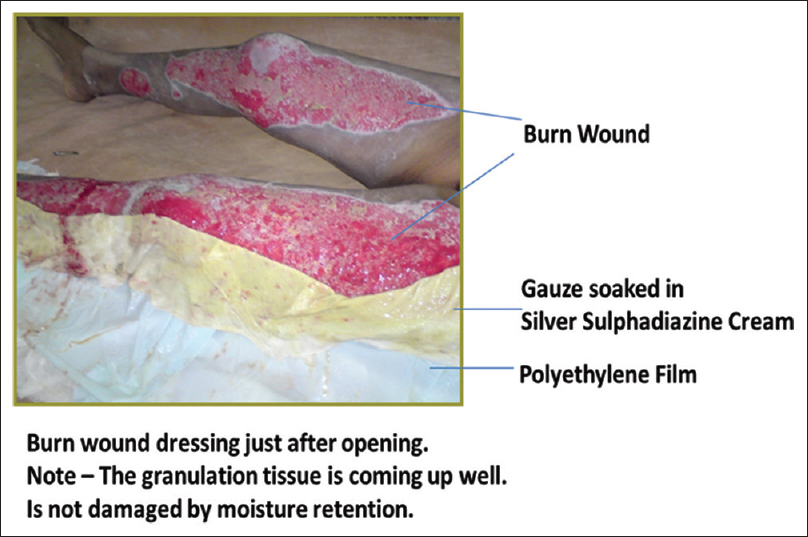 how to treat a burn wound