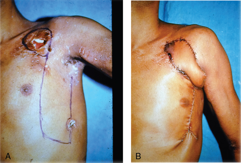 Figure 1: The use of fasciocutaneous flaps in burn scars. (a) A young adult sustained electrical injury, which exposed his polytetrafluoroethylene bypass graft from the left subclavian to the axillary artery. A 1:3 ratio fasciocutaneous flap was marked on the lateral trunk to cover the defect. (b) Sixth day postoperative result showing the vascular graft is well covered and the donor defect has been closed primarily. A slight violet discoloration of an edge of the flap is seen due to design constraint from another electrical burn in the region of the proposed flap. There was no flap loss and the wounds healed well