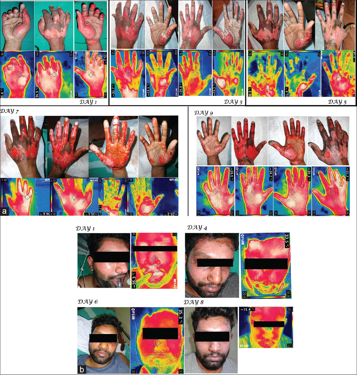 Figure 2: (a) Sequential clinical and infrared thermographic images of flame burns involving bilateral hand treated with hyperbaric oxygen therapy. (b) Sequential clinical and infrared thermographic images of flame burns involving face treated with hyperbaric oxygen therapy
