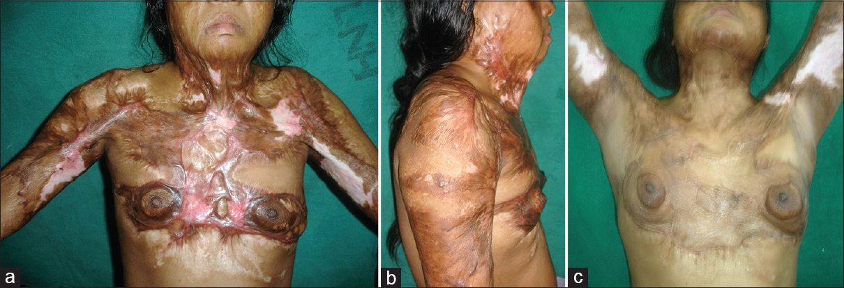 Figure 2: Photo courtesy Dr. Arun Goel. Lok Nayak Hospital, Delhi. (a and b) A 30-year female with neck, bilateral axillary, and bilateral breast contractures with extensive scarring of the upper trunk. (c) Two-year postoperative results following release of all contractures and upper trunk scarring. The staged contracture release sequence was neck, bilateral axilla followed by bilateral breast, and the entire resurfacing has been achieved by split skin grafts. The released regions were maintained with splintage, pressure garments, and silicone sheets